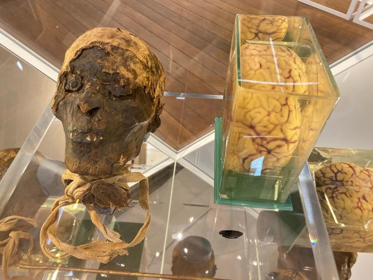 Mummified head, preserved brain, Nicholson Museum, Sydney.jpg